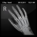 X Ray Hand-128