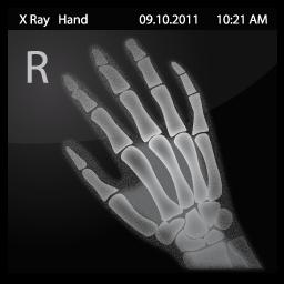 X Ray Hand