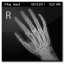 X Ray Hand Icon