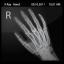 X Ray Hand-64